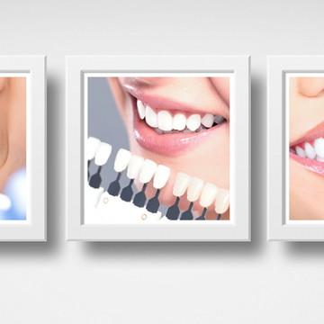 Kit 3 Quadros Consultório Dentista Estética Clínica Moldura