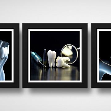Kit 3 Quadros Consultório Dentista Implantes Clínica Moldura
