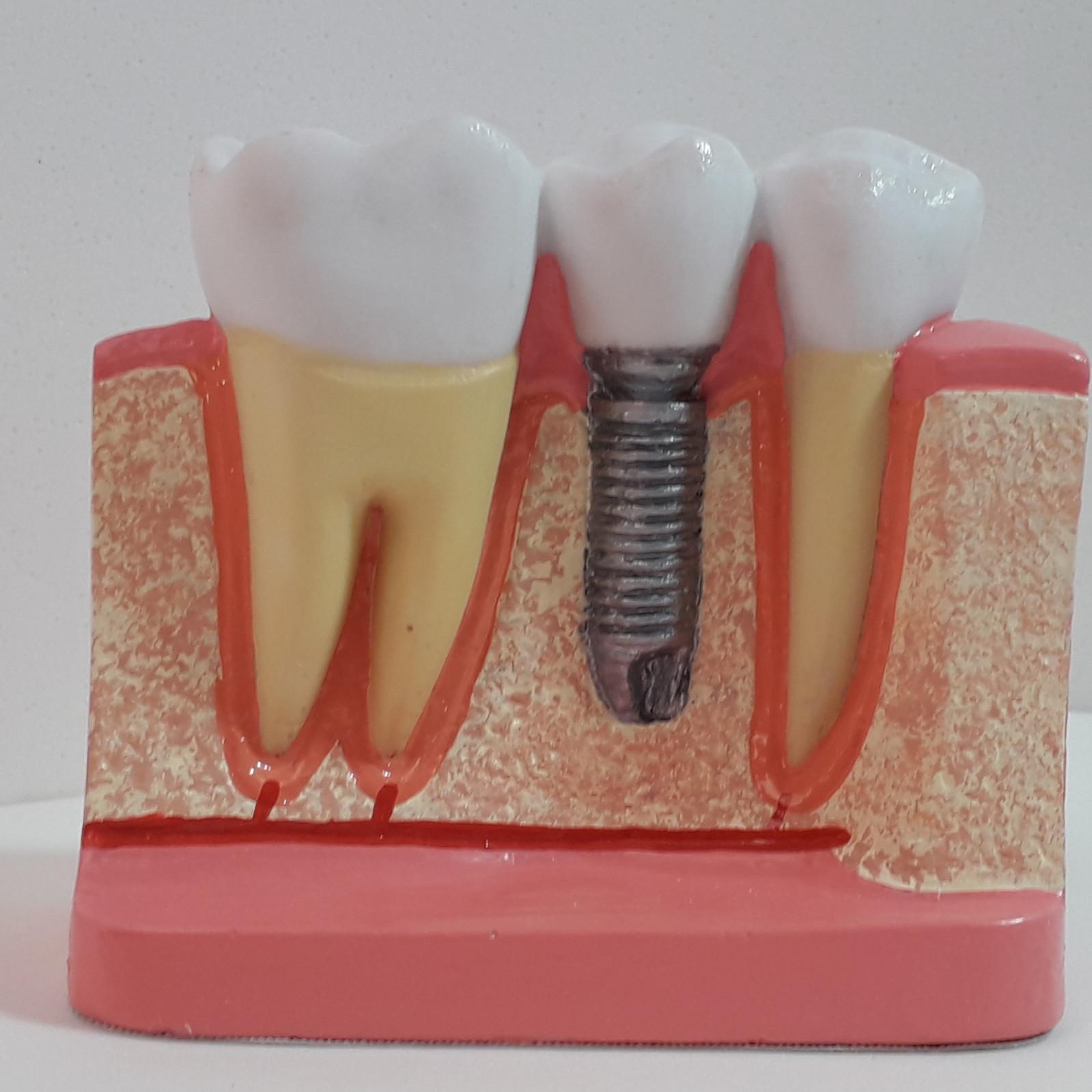 Macro Modelo Implante Odontológico Macro Dente