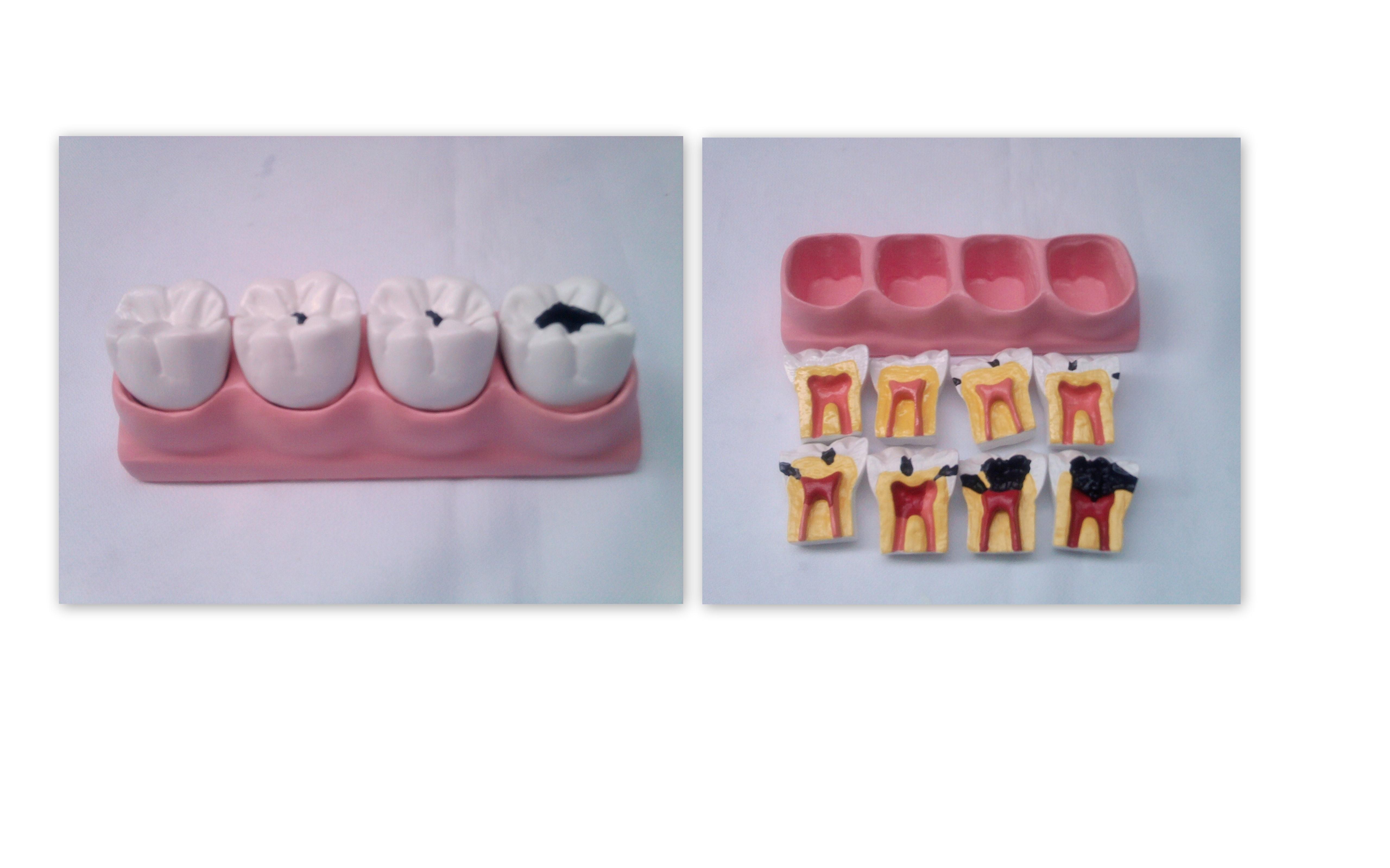 Macro Modelo Odontologico Dente Implante Elo7
