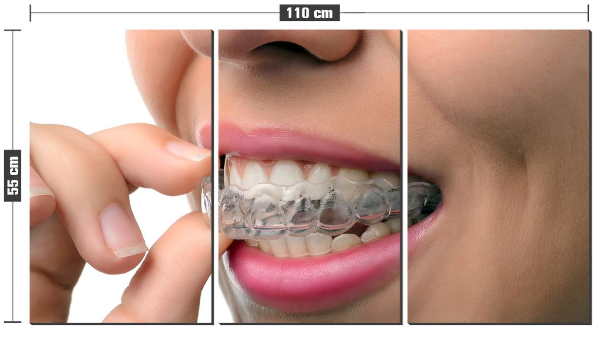 Kit Quadro Decorativo Clareamento Dentista Odonto Consultori