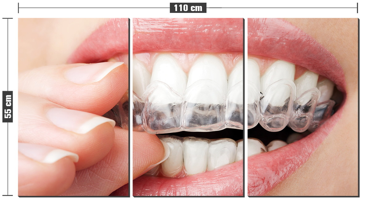 Kit Quadro Decorativo Clareamento Dental Sorriso Odonto No Elo7