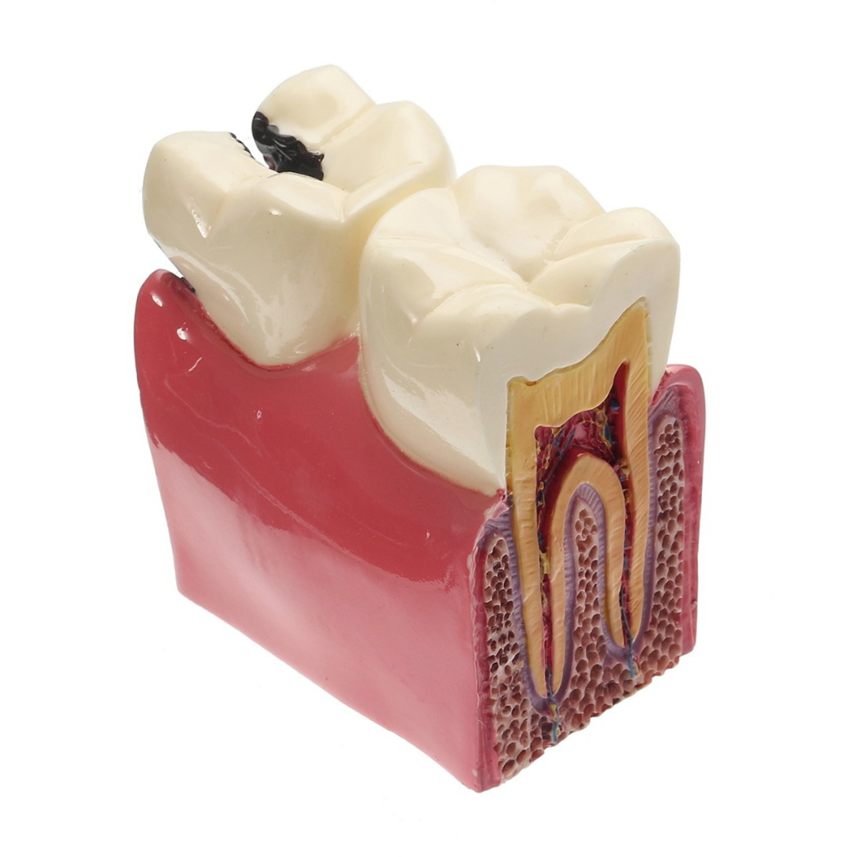 Macro Modelo Odontológico Dente Evolução Carie