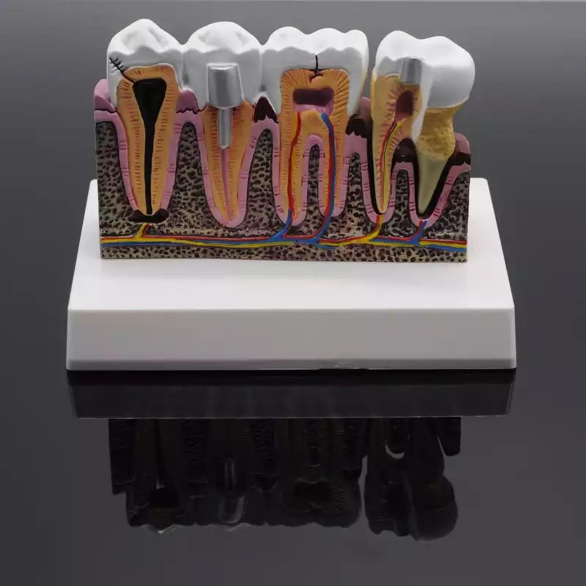 Macro Modelo Odontológico Dente Anatomia